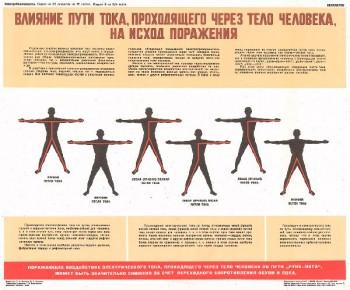 1110. Военный ретро плакат: Влияние пути тока, проходящего через тело человека, на исход поражения