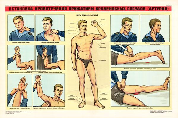 0345. Военный ретро плакат: Остановка кровотечения прижатием кровеносных сосудов (артерий)