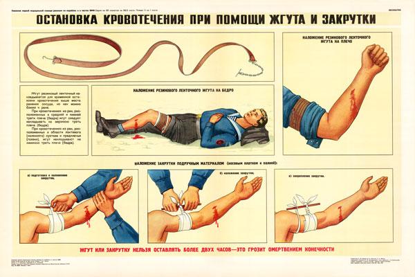0348. Военный ретро плакат: Остановка кровотечения при помощи жгута и закрутки