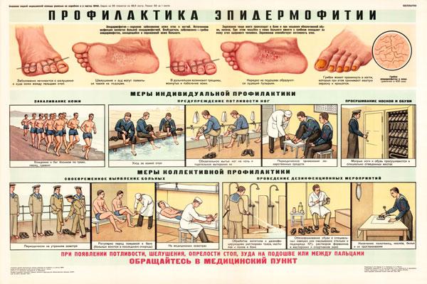 0358. Военный ретро плакат: Профилактика эпидермофитии