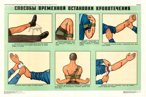 0349. Военный ретро плакат: Способы временной остановки кровотечения