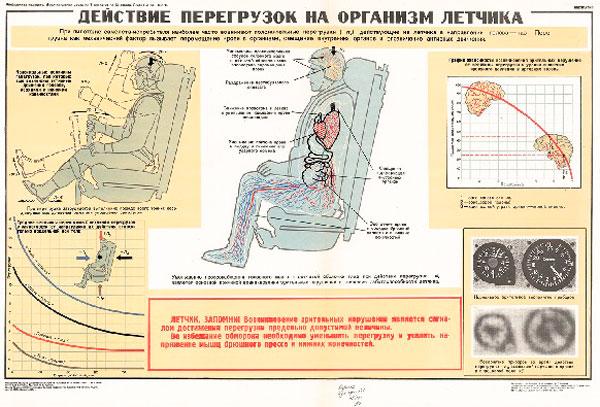 1296. Военный ретро плакат: Действие перегрузок на организм летчика